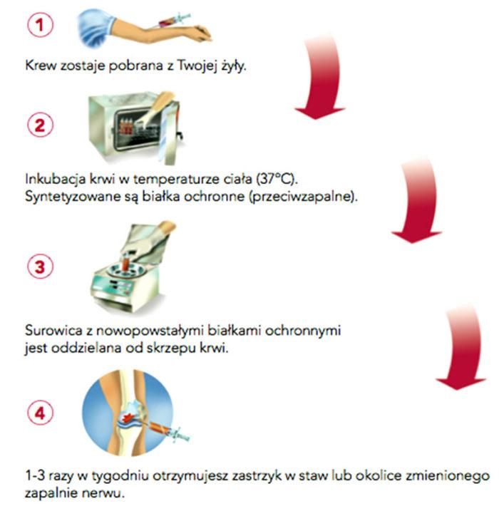 Schemat terapii Orthokine